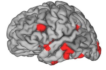 计算机化身在痴呆症检测中发挥作用
