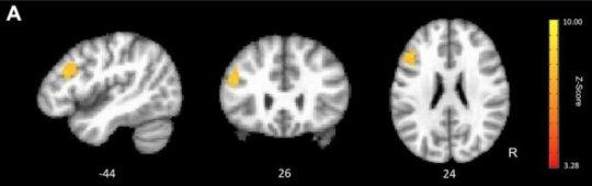 认知训练有助于重新获得年轻化的大脑