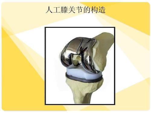研究发现膝关节置换手术后术后护理中的种族差异